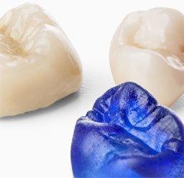 Impression 3D dentition