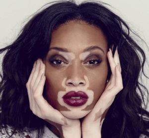 Learn Everything About Vitiligo