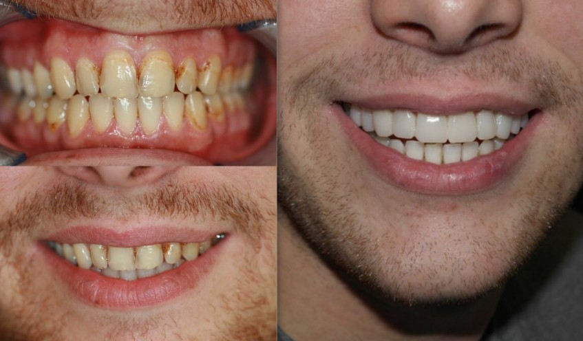 Smile Makeover By Cosmetic Dentistry before after India 2