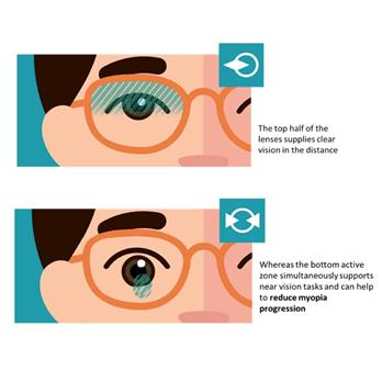 Carl Zeiss Myopia Control Lenses