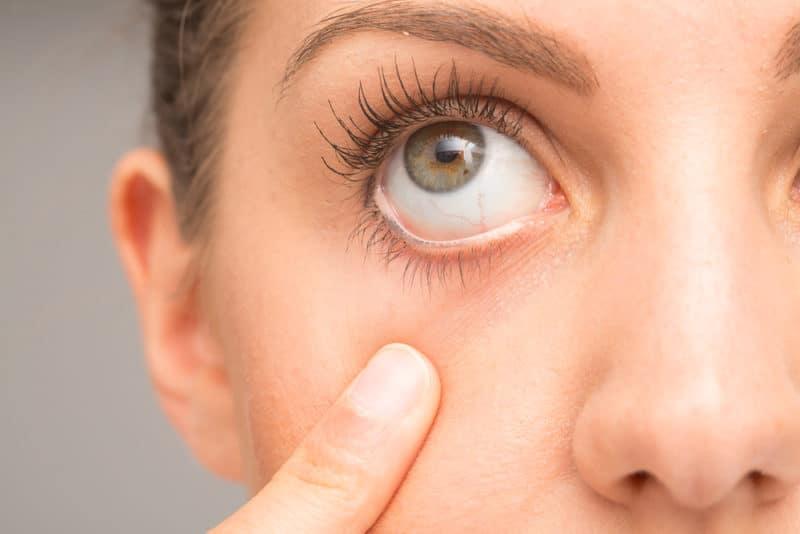 Penilaian mata kering