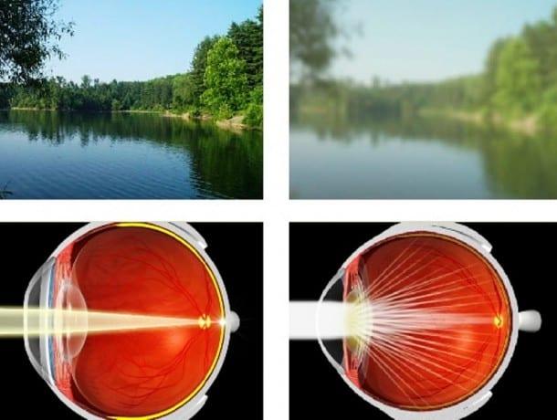 cataract screening