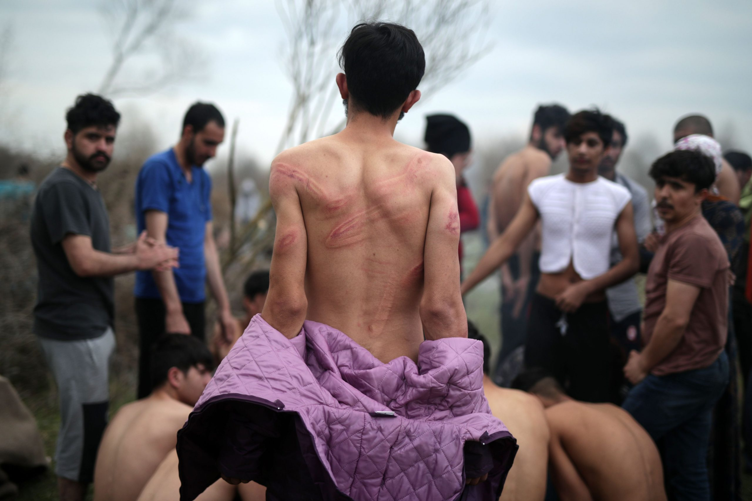 A refugee shows marks on his backs which were reportedly sustained in beatings by Greek border officials TRT World Screengrab scaled