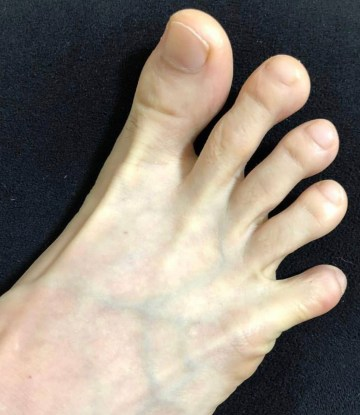 R98feet's spread bare toes