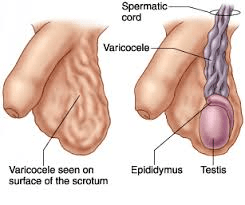 Varicocele and sex problem