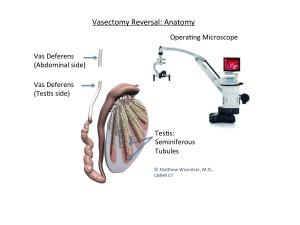 Vasectomy Reversal- Microsurgical Vasovasostomy