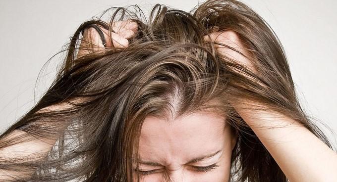 Cara Menghilangkan Kutu Rambut dengan Bahan Alami