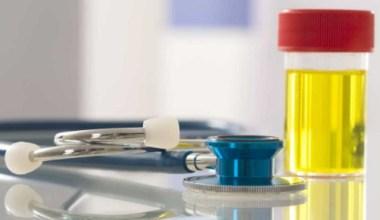 Cek Urine Untuk Menguji Diabetes