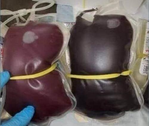 kan torbaları