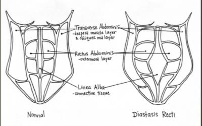 Diastasis Recti: Yoga for Abdominal Separation