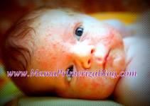 mi bebé tiene granitos rojos en la cara