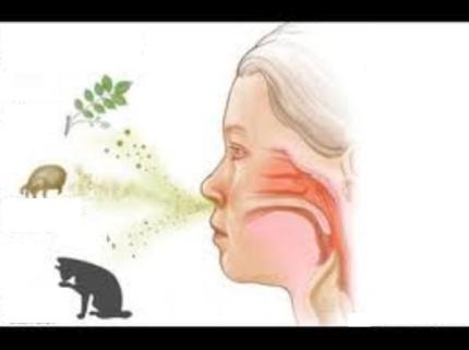 slika alergeni Vs. simptomi