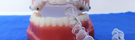 Moderno ortodontsko rješenje za majke i djecu: INVISALIGN