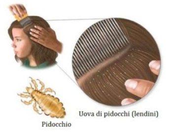 Pidocchi 500x400 300x240 - Profilassi pediculosi: cosa fare in caso di pidocchi