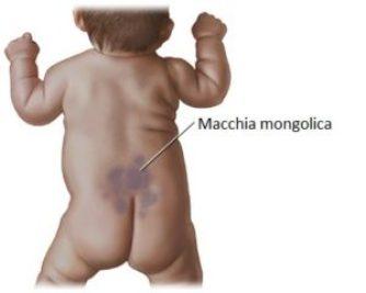 macchia mongolica 1 300x240 - Macchie blu nei neonati: cosa sono, perché compaiono, quando spariscono