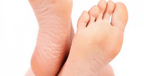 طريقة علاج تشققات القدمين وخشونتها بالاعشاب
