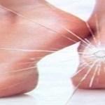 Ótima opção caseira para aliviar rachadura nos pés! Aprenda!