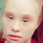 Uma menina com síndrome de Down conquista as passarelas e mostra ao mundo toda a sua beleza!