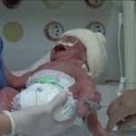 Caso muito raro: gêmeas nascem com três dias de diferença, no Paraná