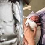 Mãe recusa-se a abortar bebê com anomalia e filho nasce perfeito