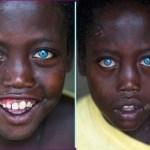 """Menino etíope de olhos azuis: ele tem 8 anos e sofre de uma síndrome rara que o tornou """"famoso"""""""