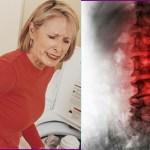 Conheça 4 sinais precoces da osteoporose — Doença silenciosa que atinge muitas pessoas!