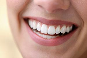 Blistav osmeh