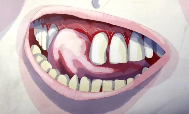 Holbrooks - teeth