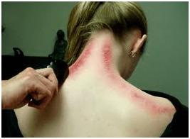 Therapeutic Bodywork