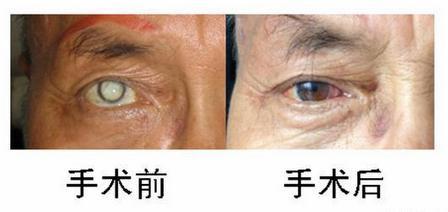 maovember 2014 surgeries mr xu 3-001