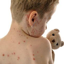 Пневмония у новорожденных: причины, симптомы, лечение и последствия