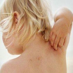 Симптомы атопического дерматита у детей