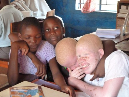 The problem of being albinos is a real one in Malawi. They are marginalised but luckily there are also special schools taking care of them