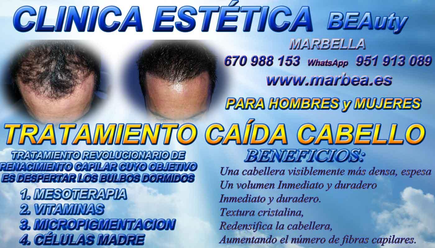 TRATAMIENTOS PARA LA CAIDA DEL PELO CLINICA ESTÉTICA micropigmentación capilar en Málaga o en Marbella y maquillaje permanente en marbella ofrece: dermopigmentacion capilar , tatuaje capilar