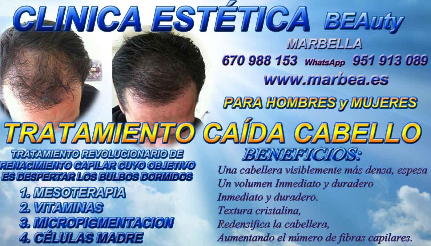 TRATAMIENTOS PARA LA CAIDA DEL PELO CLINICA ESTÉTICA dermopigmentacion capilar Málaga or en Marbella y maquillaje permanente en marbella