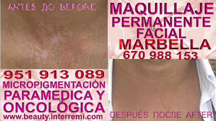 VITILIGO TRATAMIENTO clínica estética microblading ofrenda Tratamiento Del Vitiligo