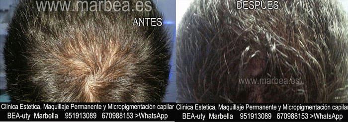 MICROPIGMENTACIÓN CAPILAR ALGECIRAS CLINICA ESTÉTICA dermopigmentacion capilar Málaga o en Marbella y MAQUILLAJE PERMANENTE en MARBELLA
