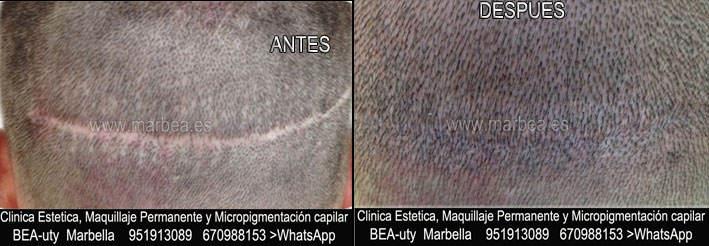CICATRICES EN EL CUERO CABELLUDO TRATAMIENTO CLINICA ESTÉTICA dermopigmentacion capilar Málaga y en Marbella y MAQUILLAJE PERMANENTE en MARBELLA