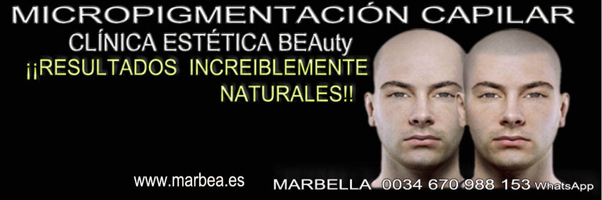 clinica estética, micropigmentación capilar en Málaga o Marbella y maquillaje permanente en marbella