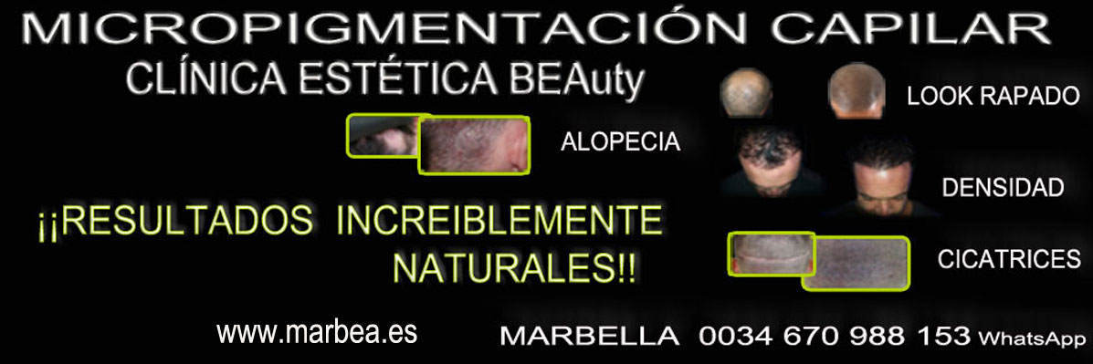 MICROPIGMENTACIÓN CAPILAR MARBELLA CLINICA ESTÉTICA micropigmentación capilar en Málaga or en Marbella y maquillaje permanente en marbella