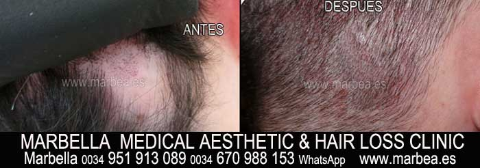 micropigmentación capilar Jérez Clínica Estética y tratamientos caida del pelo Marbella: Te ofrecemos la alta calidad de nuestroservicio