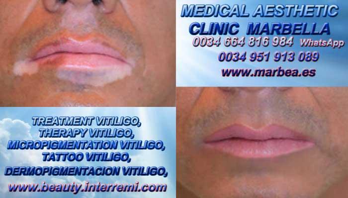TRATAMIENTO PARA LAS MANCHAS DE VITILIGO clínica estética tatuaje propone tratamiento Vitiligo