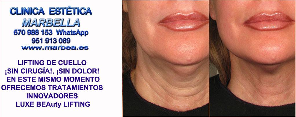 Lifting de cuello sin cirugía Murcia  Rejuvenecer cuello y papada sin cirugia. Lifting de cuello sin cirugía, Lifting de papada sin cirugia. Marbella o Murcia