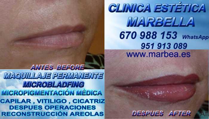 sombra de labios Málaga, CLINICA ESTÉTICA ofrenda Pigmentacion bocas en Marbella y en Málaga