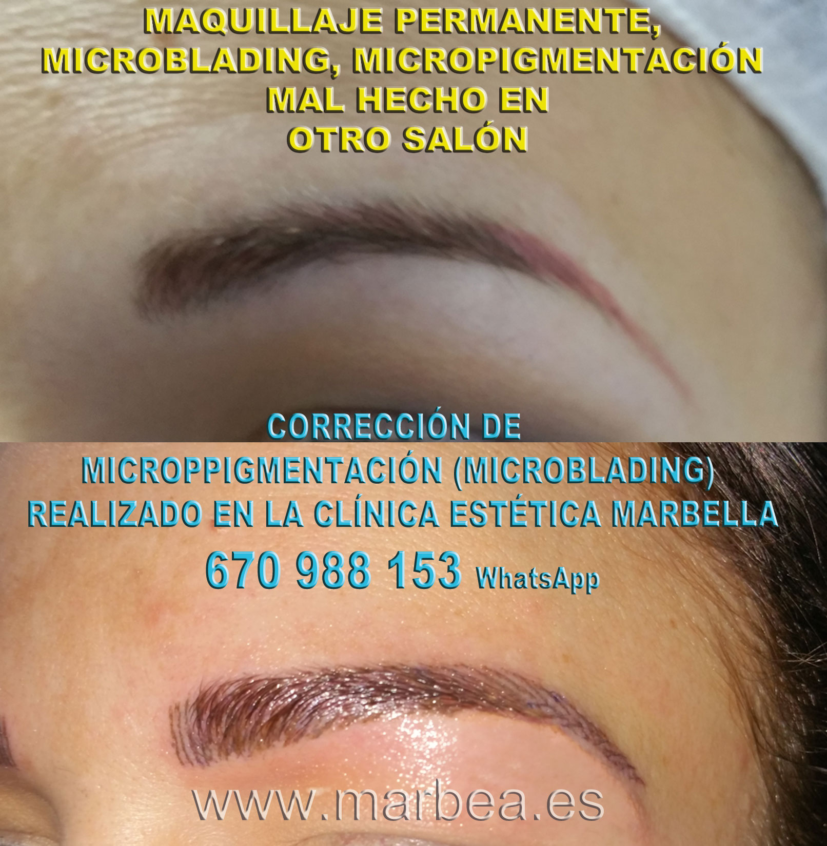 MAQUILLAJE PERMANENTE CEJAS MAL HECHO clínica estética microblading propone micropigmentacion correctiva de cejas,corregir micropigmentación mal hecha