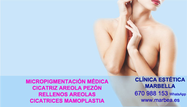 MICROPIGMENTACIÓN DE LA AREOLA clínica estética micropigmentación propone camuflaje cicatrices después de reduccion mamaria