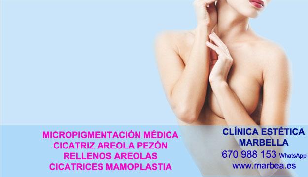 CICATRICES MAMARIA clínica estética tatuaje ofrenda camuflaje cicatrices después de reduccion de mamas