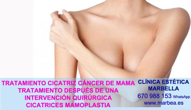 CICATRICES DESPUES DE AUMENTO DE SENOS clínica estética delineados propone tratamiento cicatrices luego de reduccion de pechos