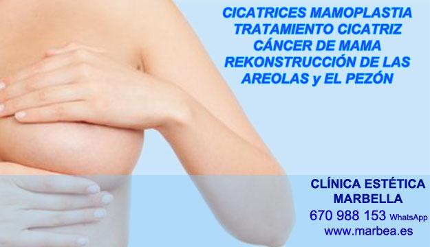 MICROPIGMENTACIÓN DE LA AREOLA clínica estética maquillaje semipermanente propone camuflaje cicatrices posteriormente de reduccion de pechos