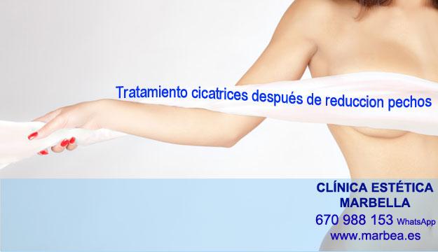 CICATRICES DESPUES DE AUMENTO DE SENOS clínica estética maquillaje permanete propone camuflaje cicatrices después de reduccion de senos